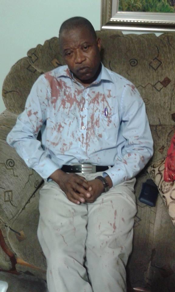 Le député national Mbata dément avoir été agressé par les partisans de l'Udps (CongoForum)